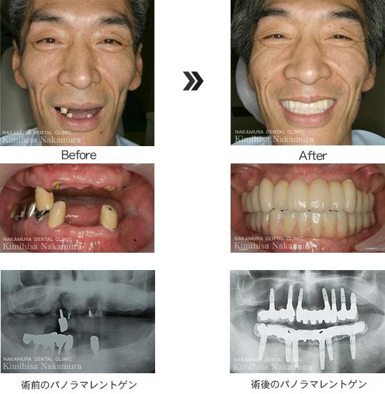 インプラント治療2 症例2