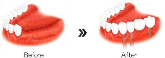 -歯を4本失った場合-