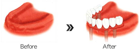 -全ての歯を失った場合-