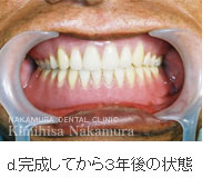 義歯・入れ歯2 超精密デンチャー(入れ歯)