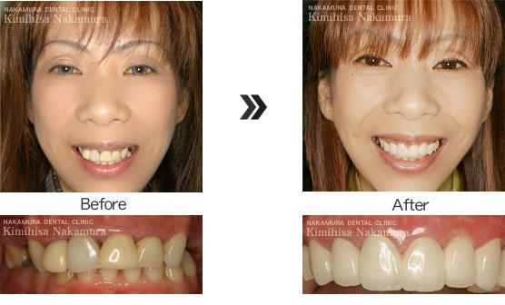 美顔・美容 審美歯科3 最先端審美歯科治療
