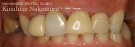美顔・美容 審美歯科3 治療の流れ