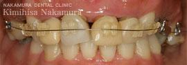 美顔・美容 審美歯科3 治療の流れ1