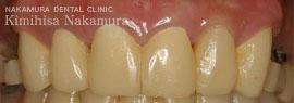 美顔・美容 審美歯科3 治療の流れ4