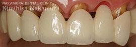 美顔・美容 審美歯科3 治療の流れ5